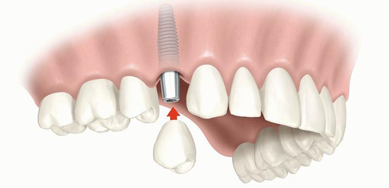 Ustanovka-implantov-1